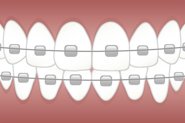 Kresba rovnátek na zuby