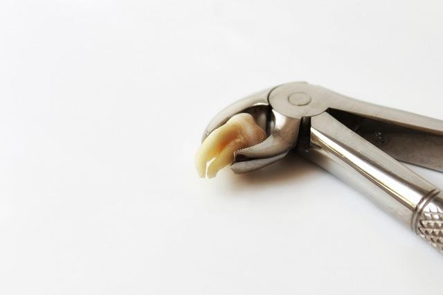 zub v kleštích
